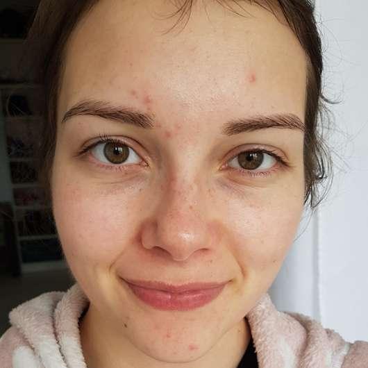 B. Kettner VisoVibe Komplettset Gesicht nach der vier-wöchigen Testphase