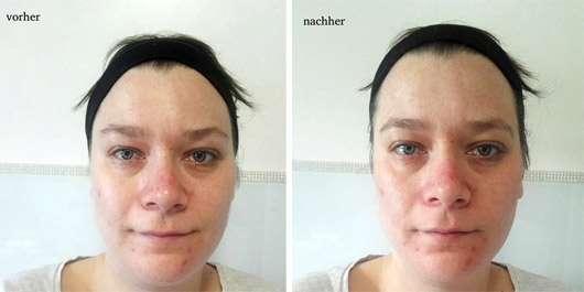The Beauty Mask Company Detox Tuchmaske - Gesicht vor und nach der Anwendung
