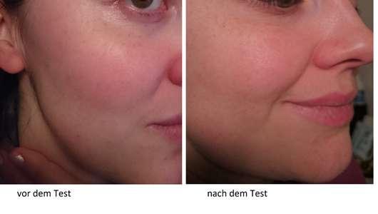 B. Kettner VisoVibe Komplettset Haut vor und nach der Testphase
