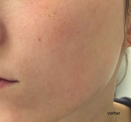 B. Kettner VisoVibe Komplettset Haut vor der Testphase