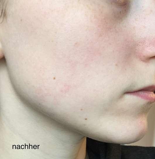 B. Kettner VisoVibe Komplettset Haut nach der Testphase