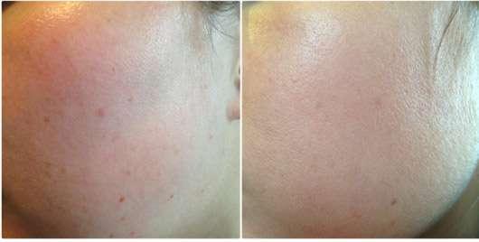 B. Kettner VisoVibe Komplettset - Gesicht vor und nach der Anwendung
