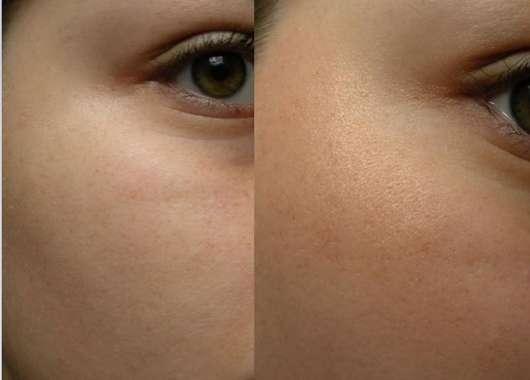 BECCA Cosmetics Shimmering Skin Perfector Pressed, Farbe: Rose Gold vorher und nachher