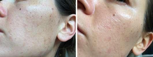 BIO:VÉGANE Bio Acai Serum (für Mischhaut) Wange vorher und nachher