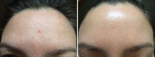 BIO:VÉGANE Bio Acai Serum (für Mischhaut) Stirn vorher und nachher