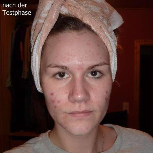 Bioderma Sébium Global Entzündungshemmende Aknepflege Haut nach der Testphase
