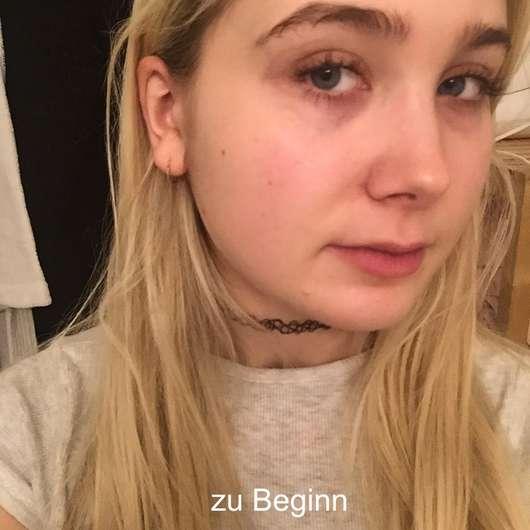 Gesicht vor Verwendung der BIO:VÉGANE Bio Goji Reinigungcreme (für anspruchsvolle Haut)