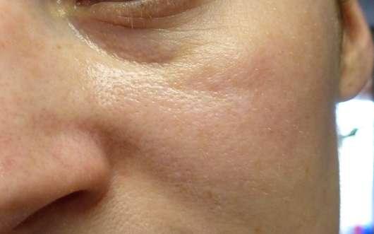 Haut vor dem Test des Douglas Nutri Focus Nourishing Serum-Oils