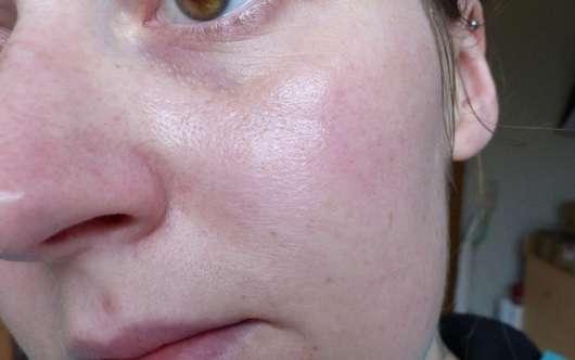 Haut nach dem 4-wöchigen Test des Douglas Nutri Focus Nourishing Serum-Oils