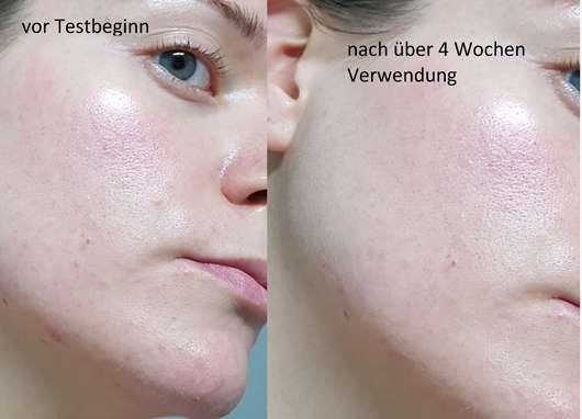 B. Kettner VisoVibe Komplettset Haut vorher und nachher