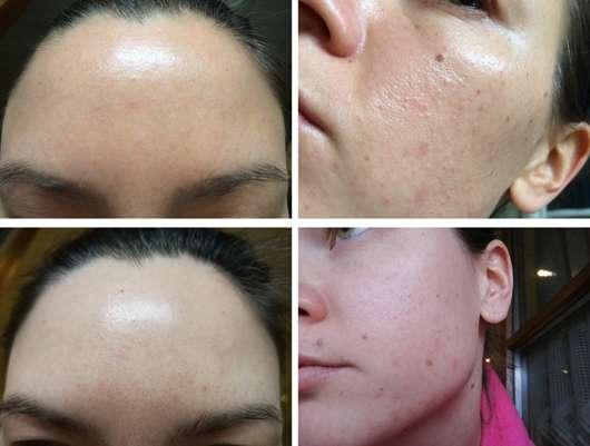 Hautbild zu Testbeginn und nach 4-wöchigem Test des B. Kettner VisoVibe Komplettsets