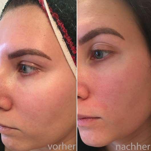 B. Kettner VisoVibe Komplettset - Hautbild vor und nach der Anwendung