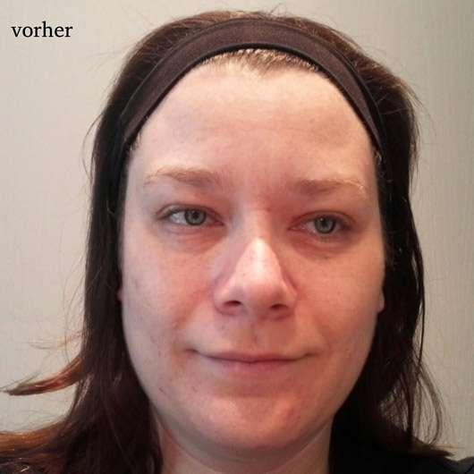 CHIARA AMBRA Straffende Hydrogel Gesichtsmaske - Gesicht vorher