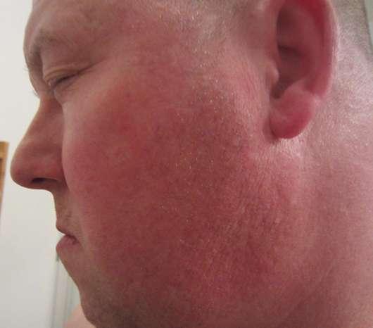 Haut zu Testbeginn der DERMAPLAN Lipid Balance 3