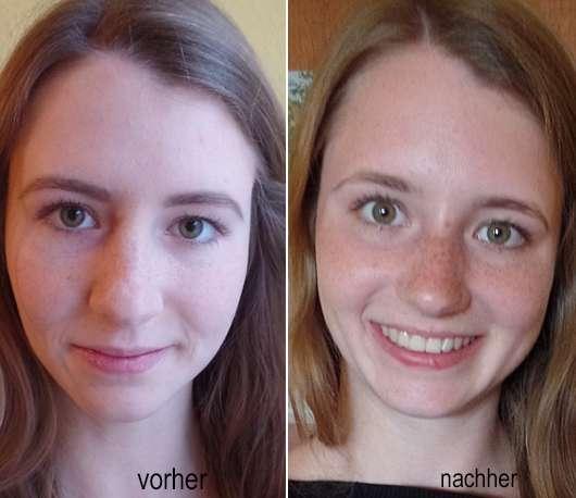 Haut zu Testbeginn // Haut nach 4 Wochen - DERMAPLAN Tonic Sensitive Klärendes Gesichtswasser