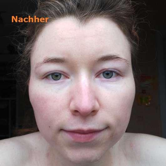 Haut nach Testende des DERMAPLAN Tonic Sensitive Klärendes Gesichtswassers