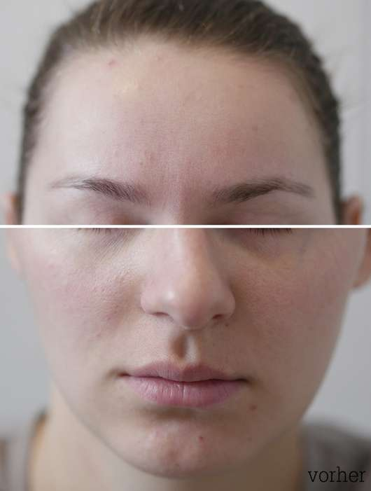 Haut zu Testbeginn der Balea Multimasking