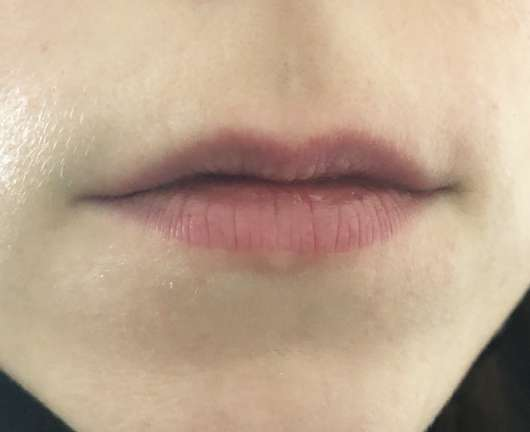 Lippen ohne Blistex MedPlus