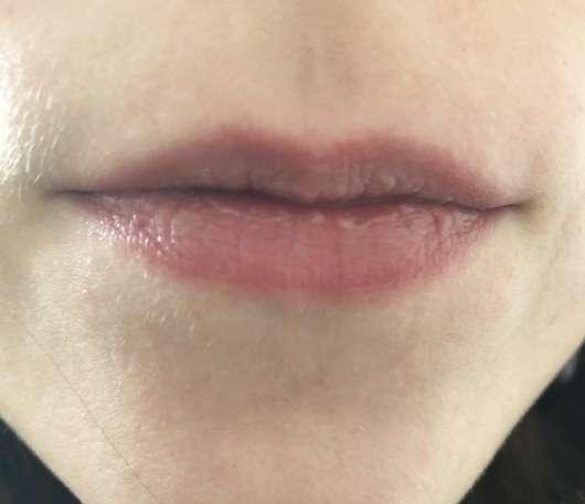 Lippen mit Blistex MedPlus