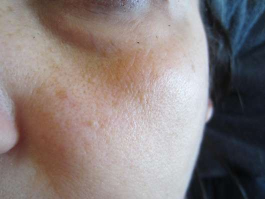 Haut zu Testbeginn des LA ROCHE-POSAY HYALU B5 Serum-Konzentrats