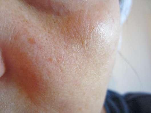Haut nach 4-wöchigem Test des LA ROCHE-POSAY HYALU B5 Serum-Konzentrats