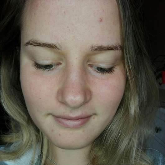 Haut zu Testbeginn des M. Asam Better Skin Anti-Pickel Gels