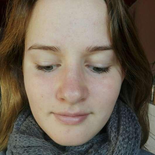 Haut nach 4-wöchigem Testen des M. Asam Better Skin Anti-Pickel Gels