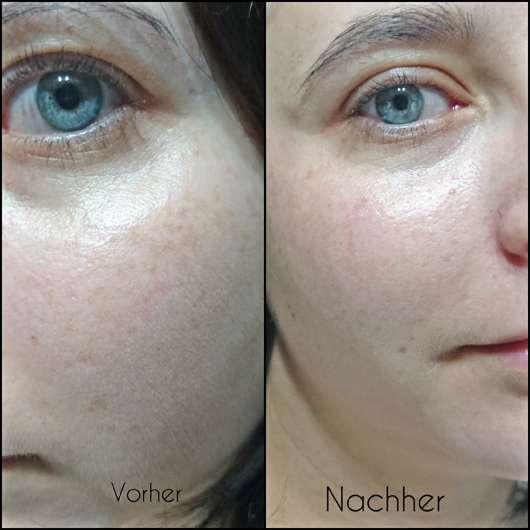 Hautbild vor/nach dem Test des BIO:VÉGANE Bio Acai Reinigungsgels