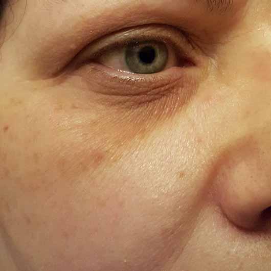Douglas Perfect Focus Radiant Eye Serum - Haut vor der Anwendung