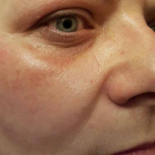 Douglas Perfect Focus Radiant Eye Serum - Haut nach der Anwendung