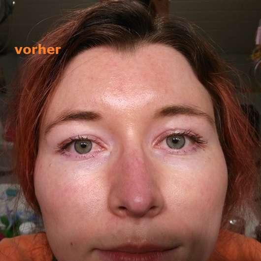 Haut vor dem Test der Garnier SkinActive Schwarze Tuchmaske mit Bambuskohle