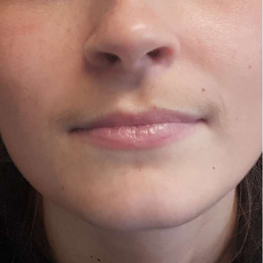 Lippen mit Kaufmann's Haut- und Kindercreme