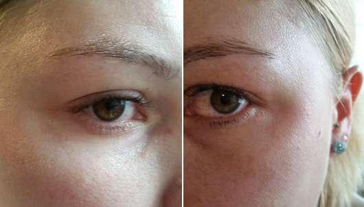 Augenpartie nach dem Test des Neutrogena Hydro Boost Belebendes Augen Creme Gels