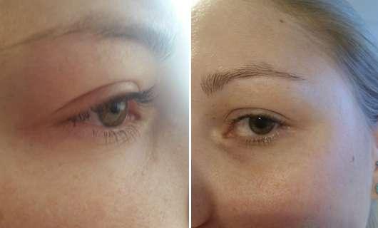 Augenpartie vor dem Test des Neutrogena Hydro Boost Belebendes Augen Creme Gels