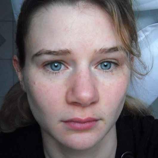 alverde Pure Beauty Mizellen-Reinigungswasser - Hautbild nach 4 Wochen