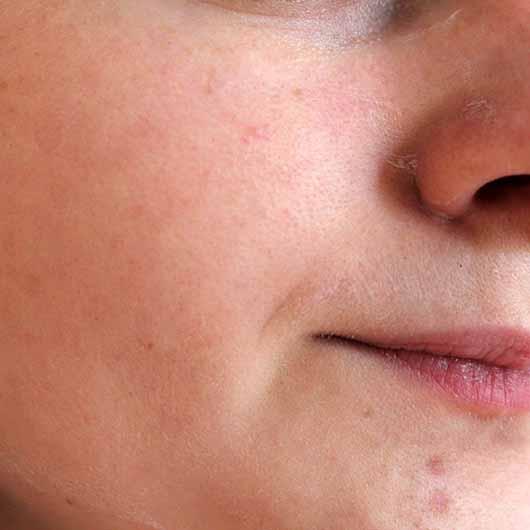 CMD Rosé Exclusive Aufbauende Pflegemaske - Maske im Gesicht aufgetragen