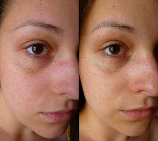 Haut vor (links) und nach dem Test (rechts)