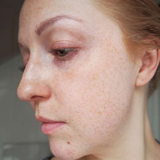 Haut nach 4 Wochen -  Douglas Perfect Focus Radiance Peel Mask