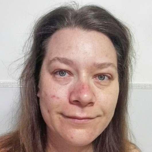 Haut vor dem Test der everdry Antibakterielle Gesichtslotion