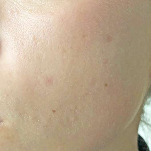 5 Tage nach Anwendung des St. Tropez Self Tan Luxe Facial Oils