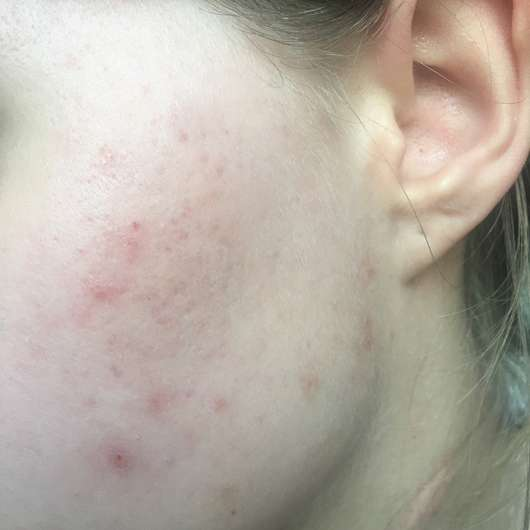 Haut ungeschminkt