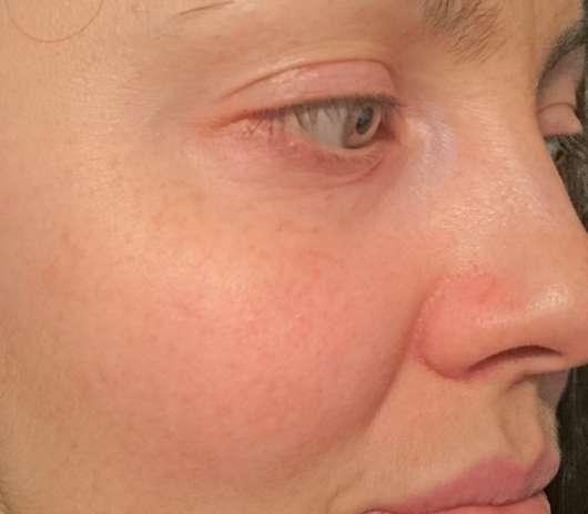 Haut vor der Testphase