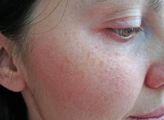 Haut nach der Testphase