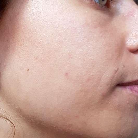 Alcina Skin Manager Bodyguard - Haut vier Wochen nach der Anwendung