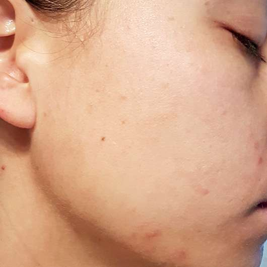 Alcina Skin Manager Bodyguard - Haut vor der Anwendung
