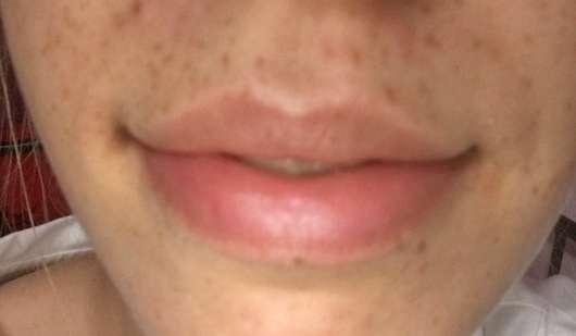 Lippen mit Blistex Lip Relief Cream