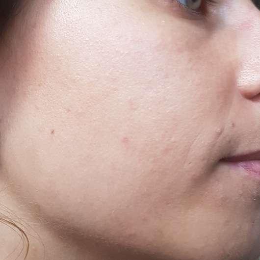 Haut nach 4 Wochen