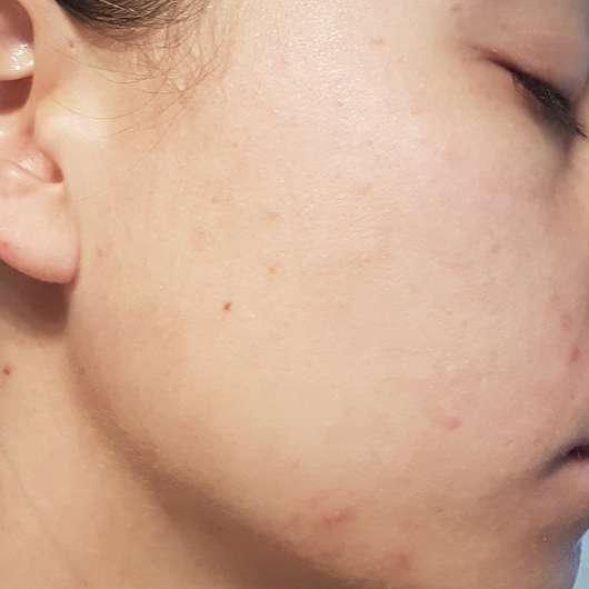 Haut vor der Anwendung