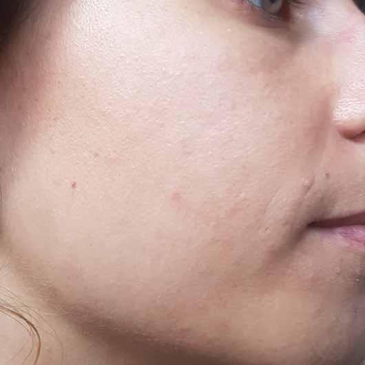 Alcina Skin Manager Perfektionist - Hautbild nach 4 Wochen
