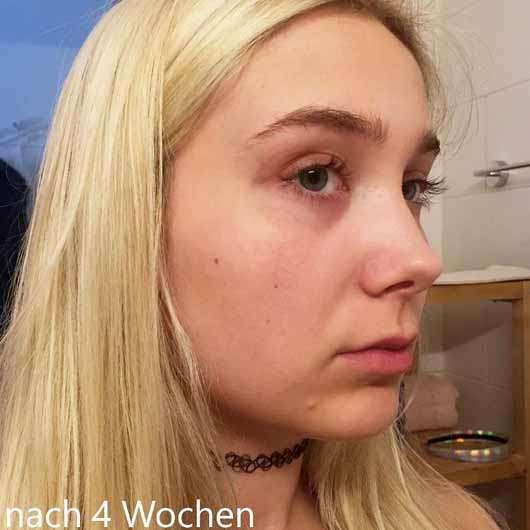 Alcina Skin Manager Perfektionist - Gesicht nach 4 Wochen Testphase